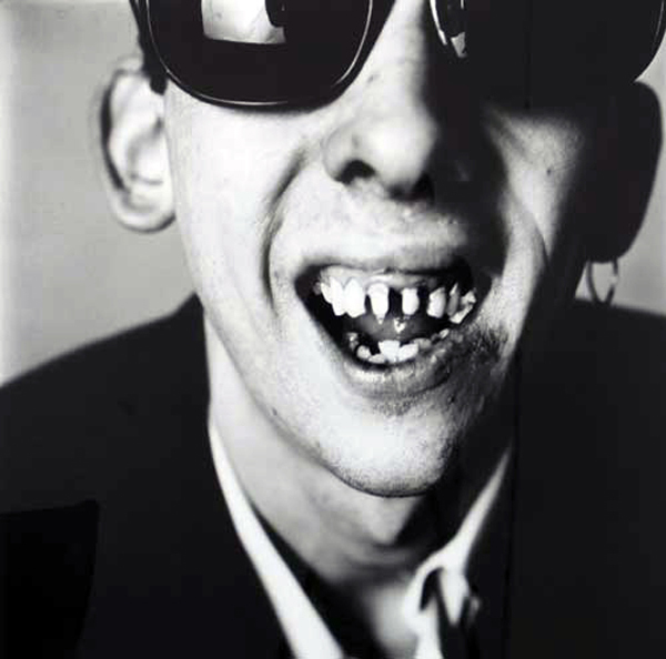 shane teeth